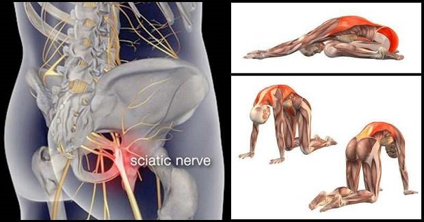 8 Exercises To Relieve Sciatica Pain Gymguider