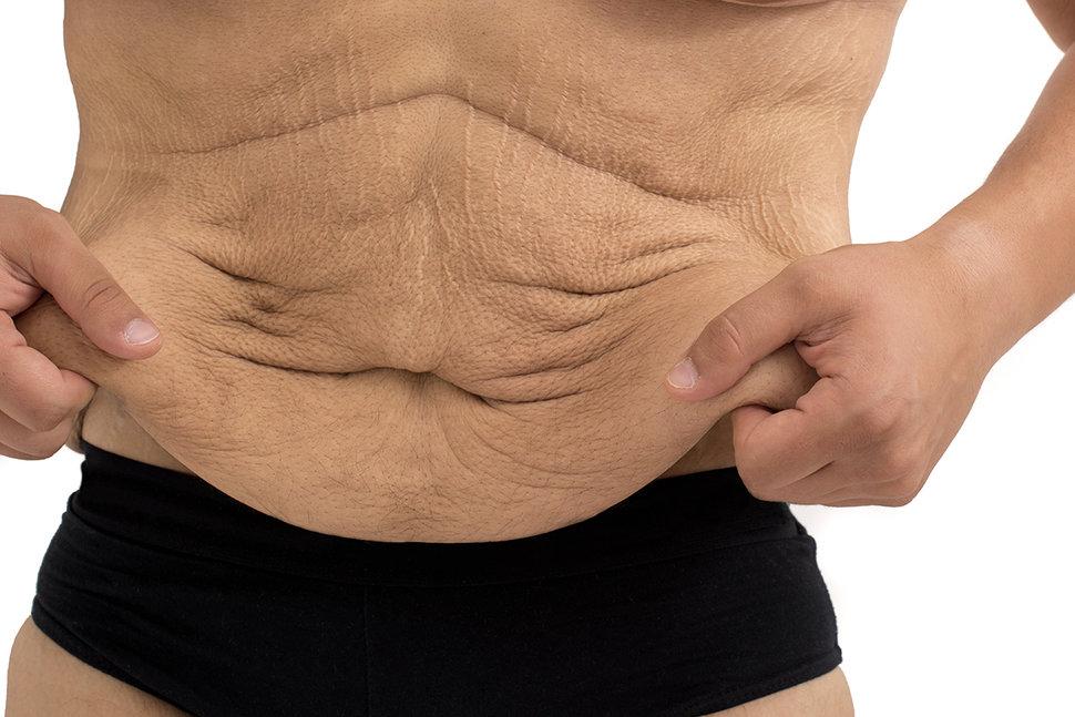 Best ways To Tighten Excess skin After Burn Fat