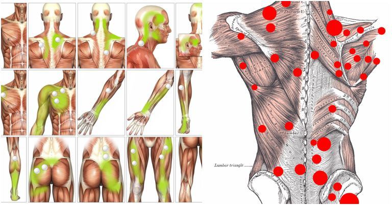 Myofascial Trigger Point Release
